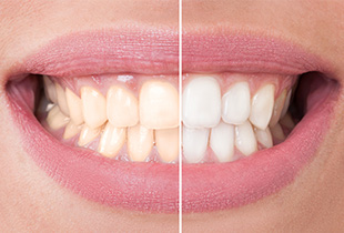 Image split before and after teeth whitening